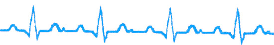 the heart rate